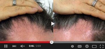 Gordon Facett - Hair Transplant 4