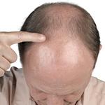 hair-trnsplant